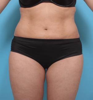 Manhattan liposuction after 7